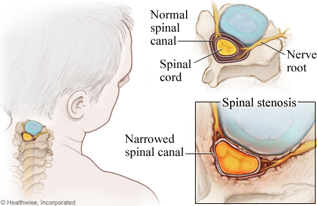 Picture of cervical spinal stenosis