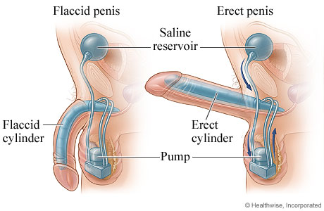 Picture of a penile implant