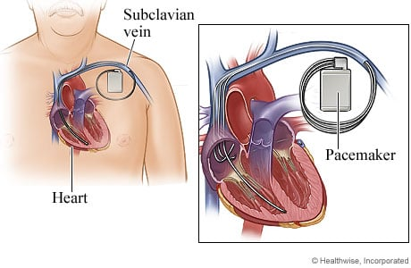 Picture of a pacemaker in the heart (cardiac resynchronization therapy)