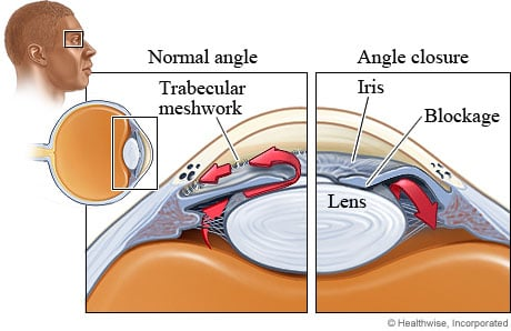 Illustration of the structures affected by closed-angle glaucoma.