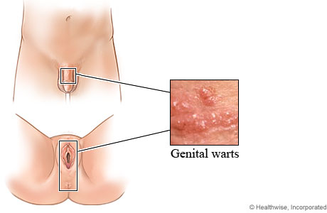 Photo of genital warts and picture of where they may appear