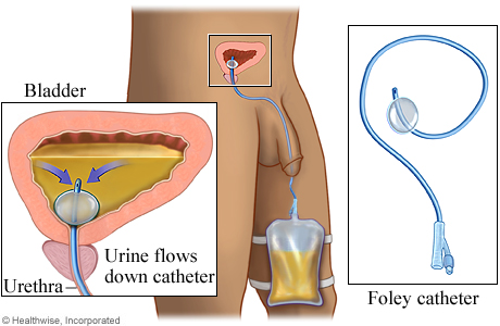 Picture of a Foley catheter in place