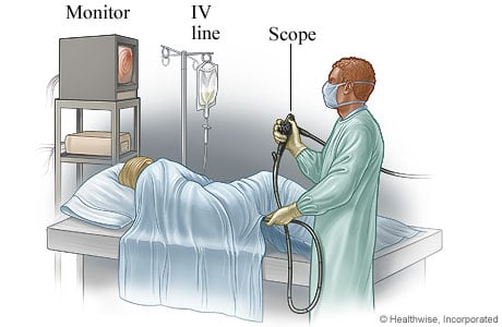 Picture of a person having a sigmoidoscopy