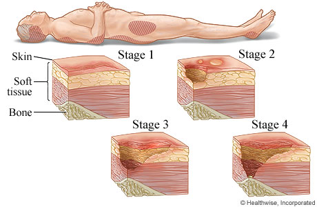 Picture of the four stages of pressure sores