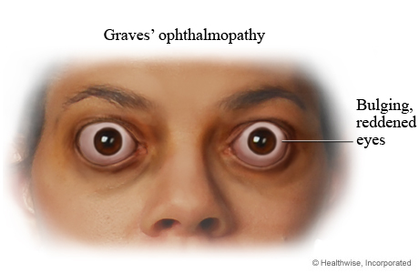 Picture of the eyes of a person who has Graves' ophthalmopathy