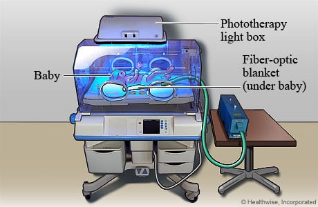 Picture of a baby getting phototherapy for jaundice