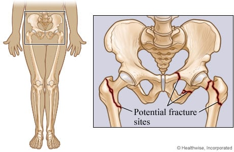 Picture of potential pelvic and hip fracture sites