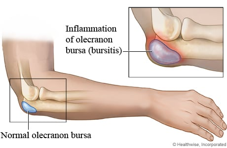 Picture of a normal and an inflamed olecranon bursa