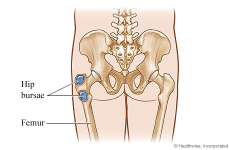 Picture of bursitis of the hip