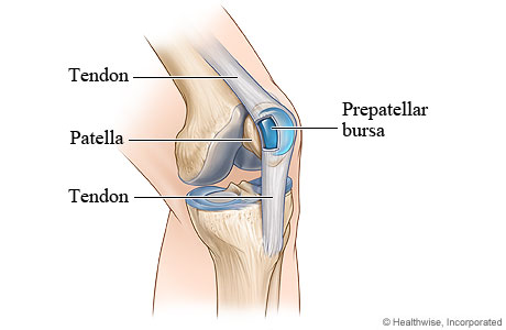 Picture of bursitis of the knee