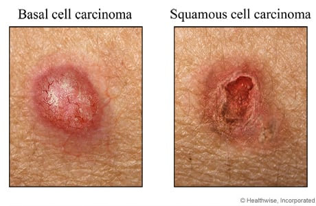 Picture of basal cell and squamous cell carcinoma