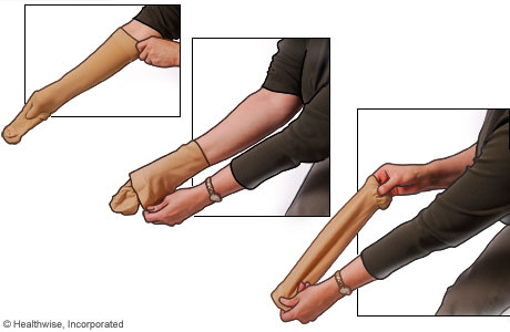 Picture of how to put on compression stockings: Step 2