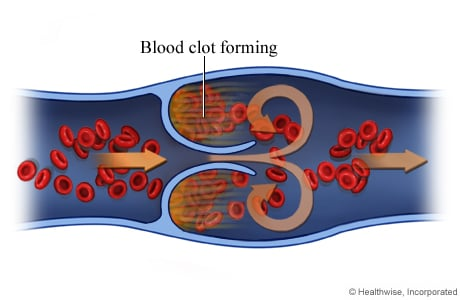 Picture of a blood clot forming in a vein