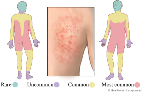Picture of areas affected by an allergic skin reaction to medicine