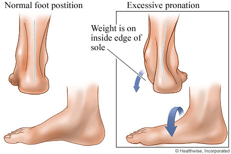 Picture of normal foot position and excessive pronation