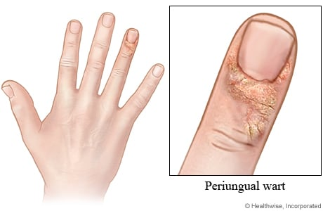 Picture of a periungual wart