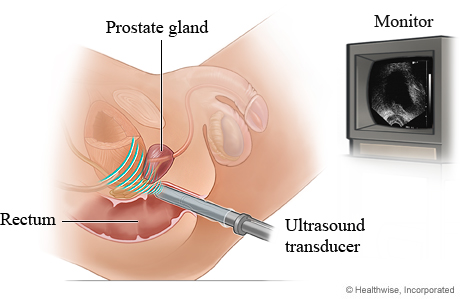 Picture of transrectal ultrasound