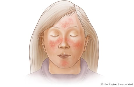 Picture of a female's face with rosacea