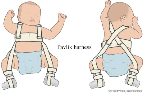 Picture of a Pavlik harness