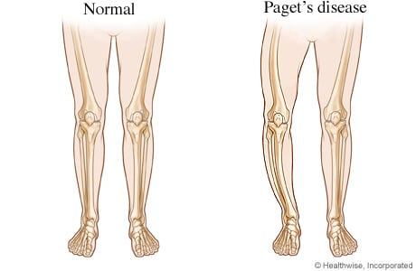 common warts on legs. Bowed legs from Paget#39;s