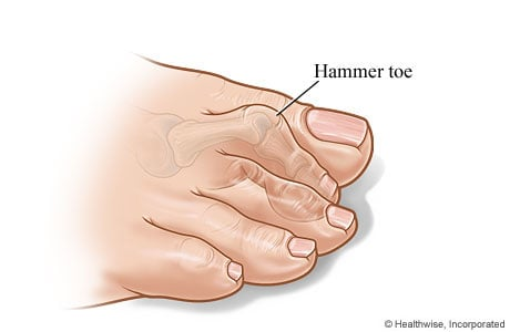 Picture of a hammer toe