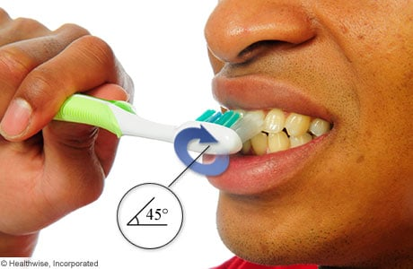 Photo of holding a toothbrush at a 45-degree angle