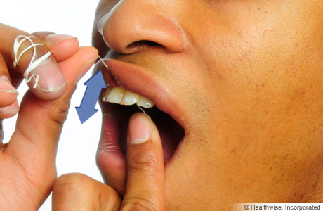 Photo of flossing between the teeth