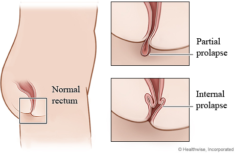 Picture of partial prolapse and internal prolapse of rectum