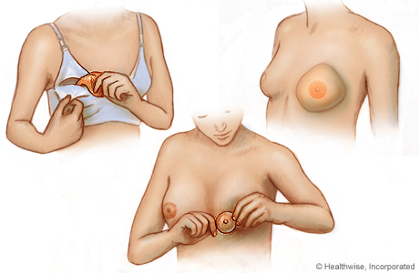 Picture of three types of breast forms