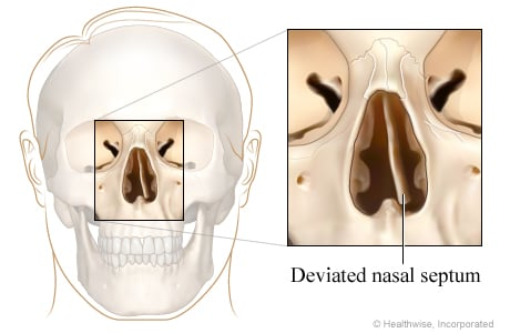Picture of deviated nasal septum