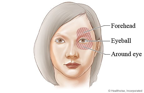 Picture of the areas of pain from closed-angle glaucoma