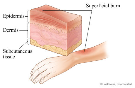 Picture of first-degree burn: superficial burn