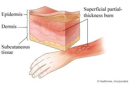 Picture of second-degree burn: superficial partial thickness burn