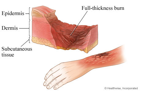 Picture of third-degree burn: full thickness burn