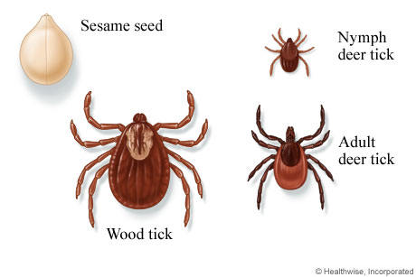 Picture of wood and deer ticks