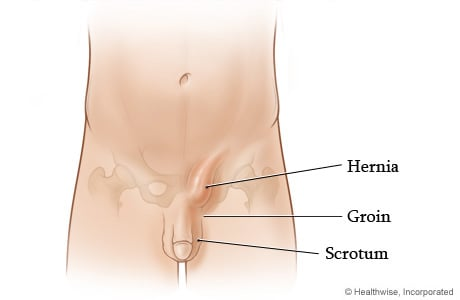 Picture of inguinal hernia