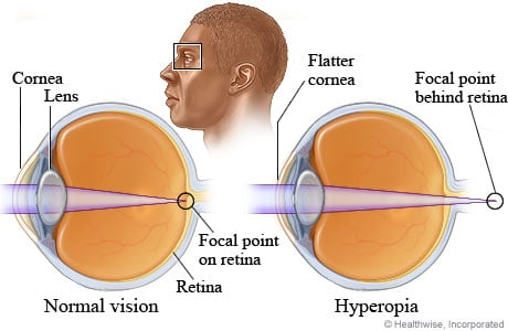 Picture of normal vision compared to farsightedness (also called hyperopia)