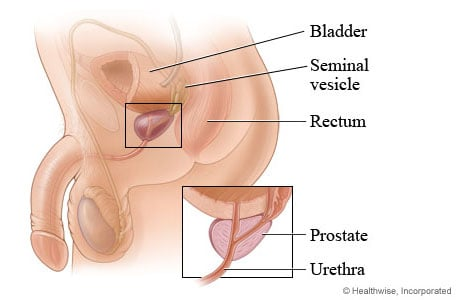 Picture of the prostate gland and its location in the body