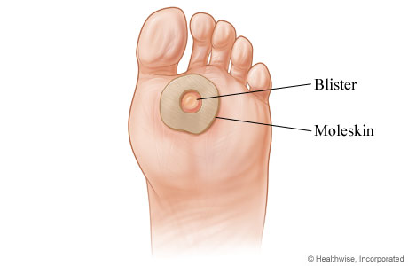 Picture of how to treat a blister