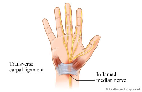 Picture of an inflamed median nerve in carpal tunnel syndrome