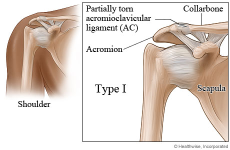 Picture of type I shoulder separation
