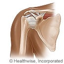 Picture of the rotator cuff in the shoulder joint