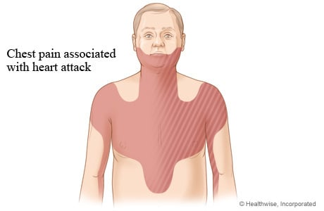 Picture of areas of chest pain associated with heart attack