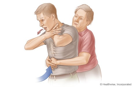 Picture of the choking rescue procedure (Heimlich maneuver) with an adult