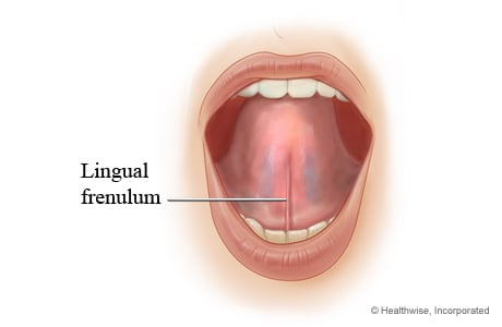 Picture of a normal lingual frenulum