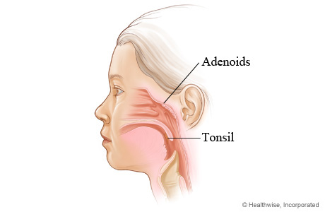 Picture of the location of tonsils and adenoids