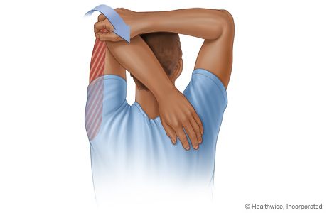 Picture of triceps stretch