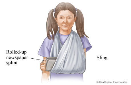 Picture showing how to sling a splint