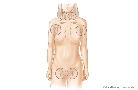 Picture of common sites of swollen lymph nodes