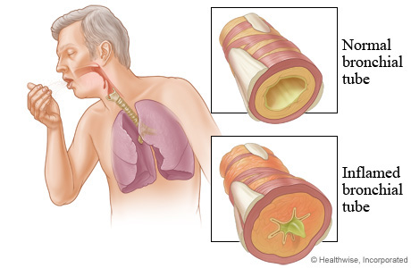 Picture of chronic bronchitis